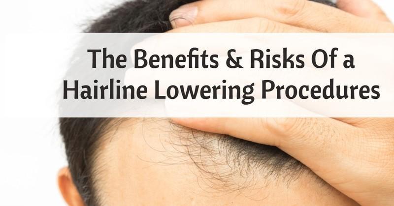 Hairline procedure